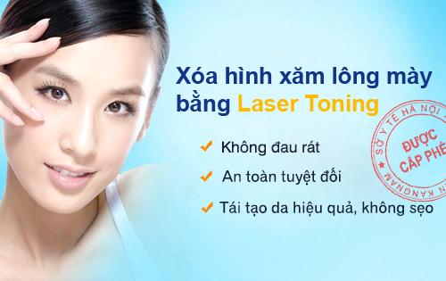 xóa xăm bằng Laser Toning