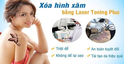 Xoa-hinh-xam-bang-laser-1