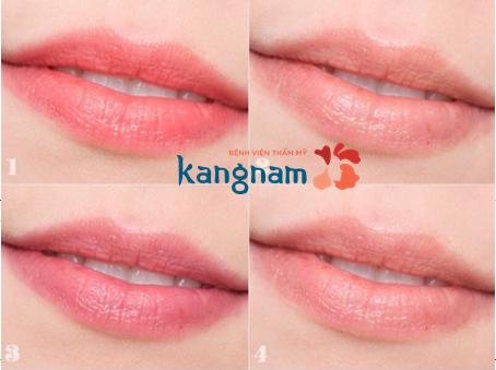 Giải đáp thắc mắc : Xóa xăm môi có đau không?