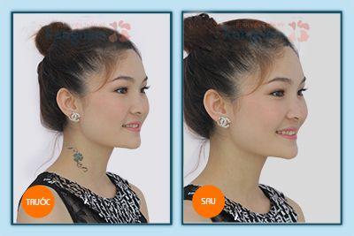 Hình ảnh trước và sau xóa xăm