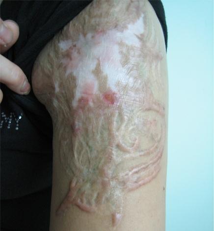 Xóa xăm bằng các phương pháp cũ không hiệu quả và thường để lại sẹo