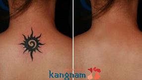 can-canh-xoa-hinh-xam-bang-laser-toning-plus-tai-kangnam 2