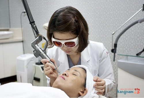 xóa xăm môi bằng laser 2