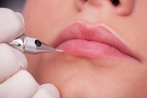 xóa xăm môi có đau không 1