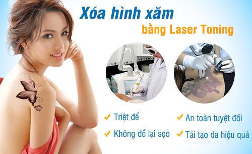cong-nghe-xoa-xam-bang-laser-toning-an-toan
